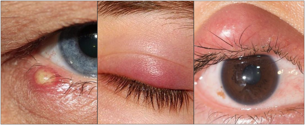 Difference between external stye, internal stye and chalazion