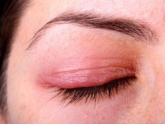 Do Tea Bags Help Get Rid of a Stye?