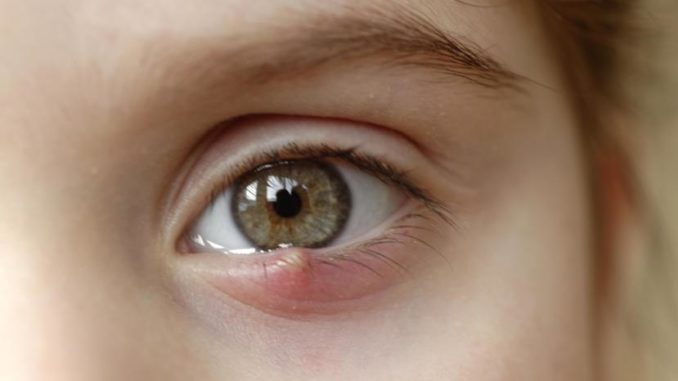 How Do You Get Rid Of A Stye?
