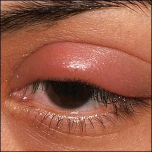 Causes of simple tiny pimple on upper eye lid almost inside the eye near eye lashes photo.