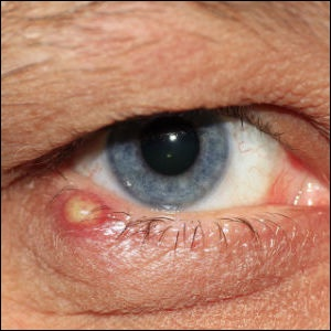 How to get rid of a badly infected stye on the lower eyelid?