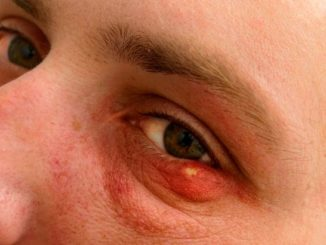 3 Easy Treatments to Get Rid of a Stye