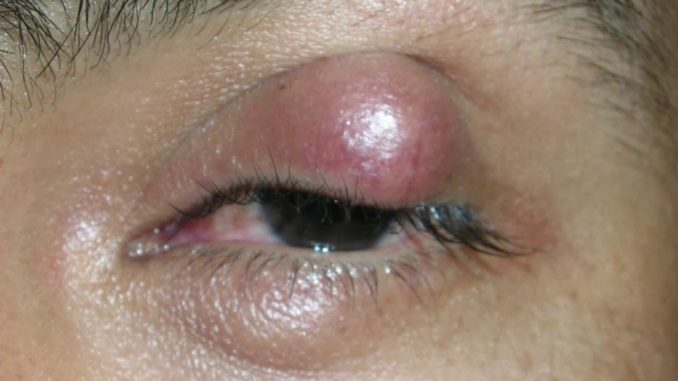 Effective Stye Medicine Over-The-Counter